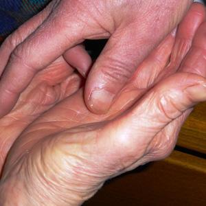 Les onguents et les gels à atopitcheskom la dermatite